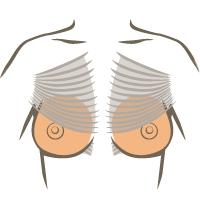 Mooie borsten dankzij kliniek Veldhoven – borstvergrotingen